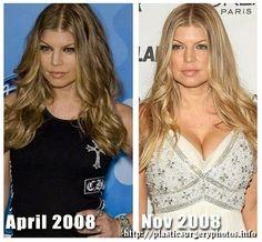 Fergie antes y después de su aumento de senos. #farándula #cirugía #plasticsurgery #cirugiaplastica