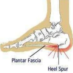 Natural Cures For Heel Spurs - linseed oil, cabbage leaves....