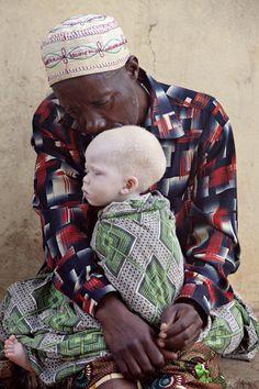 """White Shadows"" ~ Shining a Light on Tanzania's Albinos. White Shadows project on albino people – Tanzania"