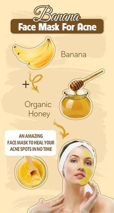 Amazing Bananas - Face Mask For Acne - Style Vast - Amazing Bana . - Amazing Bananas – Face Mask For Acne – Style Vast – Amazing Banana Face Mask For Acne – - Face Mask For Pores, Acne Face Mask, Acne Skin, Acne Facial, Facial Cleanser, Oily Skin, Skin Oil, Facial Scrubs, Facial Hair