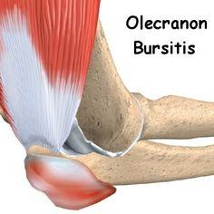 Natural Cures For Bursitis