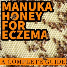Manuka Honey for Eczema: A Complete Guide   INCLUDING RECIPES AND PRODUCT COMPARISONS