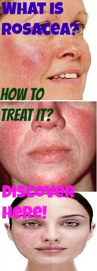 Discover What Is Rosacea, What Triggers Flare Ups And How To Treat It! http://www.stanshealth.com/2013/04/what-is-rosacea.html