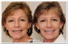Does Facelift Dentistry use Facelift Dentures? Read what Dr. Muslin has to say about #FaceLiftDentures