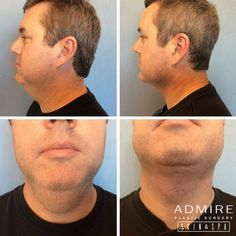 #TransformationTuesday - This is just 2 weeks post-op for #Liposuction to the neck. Fantastic results! Schedule a consultation with Dr. Admire: http://admireplasticsurgery.com/contact/
