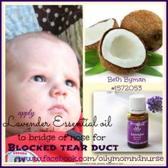 Young Living Lavender for blocked tear duct!!! AMAZING!