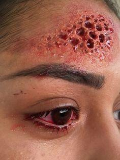 Maquillage FX - Maladie de peau inconnue