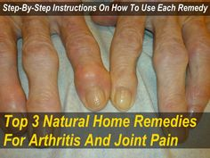 Top 3 Natural Home Remedies for Arthritis & Joint Pain