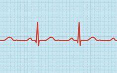 cardiogram.jpg