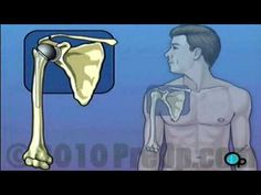 Video - Shoulder Replacement