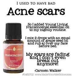Hmm... Where are my DoTerra girlies on this???  @Leslie Lippi Lippi Lippi Lippi Lippi Crane Bye,  bye acne scars