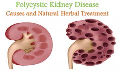 Polycystic Kidney Disease: Causes and Natural Herbal Treatment         #polycystic #kidney #kidneydisease #polycystickidneydisease #kidneycauses #naturaltreatment #herbaltreatment