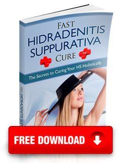 fast hidradenitis suppurativa free pdf http://www.bestcureforhidradenitissuppurativa.com/cure-hidradenitis-suppurativa-fast-hidradenitis-suppurativa-cure-ebook/