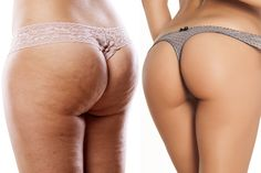 How to get rid of cellulite in the quickest easy way via diet and exercise