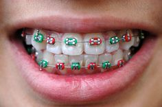 Dental Braces is used to fix crook or misaligned teeth.To know more about dental braces visit www. Green Braces, Fake Braces, Braces Cost, Braces Tips, Dental Braces, Teeth Braces, Better Braces, Kids Braces, Cute Braces Colors