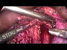 Dr Pradeep Jain - Total Lap. Pancreatico Duodenectomy for Carcinoma Head of Pancreas
