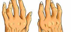 Combata artrite, esporão e ácido úrico