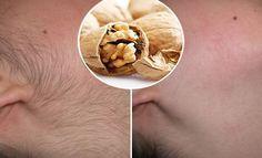 depilazione viso naturale definitiva