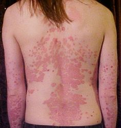 Psoriasis Relief Blend2 drops tea tree 2 drops Roman chamomile 2 drops lavender 2 drops patchouli (dilute at least 50/50 with carrier oil)