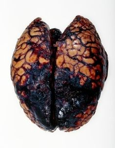 Brain hemorrhage, post-mortem.