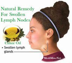 Castor Oil - Natural Remedy For Swollen Lymph Nodes ~ MediMiss