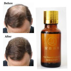 Hair Growth Essence Anti Hair Loss Products 20ml Pilatory Hair Grow Faster Restoration Dense Hair Regrowth Treatment Serum