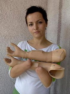 Bobana Latincic lost her hands to a grenade explosion during the war in Bosnia and Herzegovina.