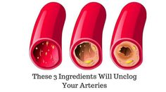 If you have poor circulation, this is the recipe for you! The same goes for those who often get sick because of poor immunity, and for those who have problems with blood vessels. Fatty foods, proce…