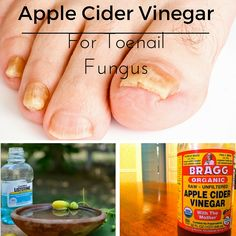 How to Use Apple Cider Vinegar to Cure Nail Fungus. Fungus is most commonly found on toenails, it can also infect fingernails. The methods below can be used to cure and prevent fungal infections for both.