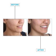 Before and after using the TEI Spa Oxyderm High Frequency tool - Remember, feel free to ask any questions, I am here to help! Ask Any Question, Any Questions, This Or That Questions, Spa, Tools, Feelings, Free, Instruments