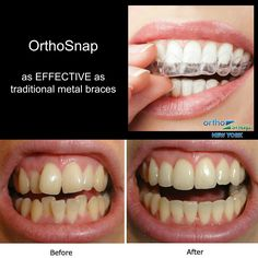 Clear aligners OrthoSnap - true and only effective alternative to traditional braces. Comfortable, removable, convenient teeth straightening solution | OrthoSnap New York | #manhattan and #brooklyn | 1.844.678.4676 | www.OrthoSnapNY.com | #dentist #orthodontist #newyork #nyc #ny #straightteeth #teethstraightening #teeth #braces #smile #beauty #confidence #orthosnap #aligners #teethaligners #life #teen #instasmile #instapic #cool #gorgeous #invisalign #invisiblebraces #clearbraces…