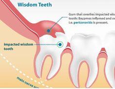 Easy and Safe Wisdom Teeth Removal in Melbourne #WisdomTeethRemovalMelbourne