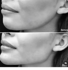 surgery rinoplastia A perfect chiseled jawline Facial Fillers, Botox Fillers, Dermal Fillers, Chin Filler, Hyaluron Filler, Epione Beverly Hills, Relleno Facial, Chiseled Jawline, Acne Scar Removal Treatment