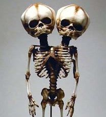 Siamois jumeaux siamois squelettes foetaux, fabriqués sur commande.