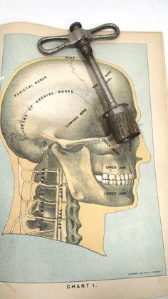 Antique Medical Skull Drill or Trephane by UrbanRenewalDesigns