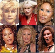 Famosos que se hicieron cirugía plástica y quedaron HORROROSOS (Fotos) - http://www.leanoticias.com/2011/12/22/cirugas-plsticas-de-famosos-cuando-la-gracia-se-vuelve-morisqueta-fotos-o-o/
