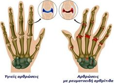 Home Remedies for Arthritis in Hand. How to Get Rid of Arthritis in Hand? Cure Arthritis in Hand Fast. Treat Arthritis in Hand. Rheumatoid Arthritis Hands, Yoga For Arthritis, Rheumatoid Arthritis Treatment, Arthritis Pain Relief, Knee Arthritis, Types Of Arthritis, Arthritis Symptoms, Arthritis Gloves, Autoimmune Disease