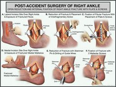 Post-accident surgery of the right ankle.