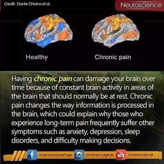 Chronic fatigue syndrome and fibromyalgia often have very similar treatments due to the fact that these two syndromes share a lot of common characteristics. If you are a chronic fatigue syndrome or fibromyalgia patient, the treatments Chronic Fatigue Syndrome Diet, Chronic Fatigue Symptoms, Chronic Migraines, Chronic Pain, Chronic Tiredness, Best Friend Poems, Hypermobility, Ankylosing Spondylitis, Trigeminal Neuralgia