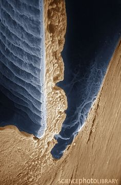 Scanning electron micrograph showing the iris of the eye. It's truly hard to believe just how delicate and thin the iris is. Scanning Electron Microscope, Eye Facts, Microscopic Photography, Micro Photography, Microscopic Images, Macro And Micro, Extreme Close Up, Things Under A Microscope, Tiny World
