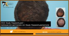 FUE Hair Transplant -Advanced methods of Hair Transplantation FUE Hair Transplant -Advanced methods of Hair Transplantation - Hair Transplant In India, Hair Transplant Surgery, Best Hair Transplant, Thicken Hair Naturally, Hair System, Hair Falling Out, Extreme Hair, Hair Starting, Health