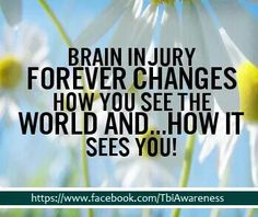 The brain stroke is responsible for coordinating every action and thoughts that in its through our body. My Beautiful Broken Brain, Brain Injury Awareness, Epilepsy Awareness, Tramatic Brain Injury, Injury Quotes, Post Concussion Syndrome, Subarachnoid Hemorrhage, Brain System, Gambling Addiction