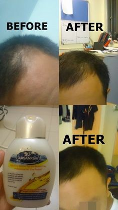 Organic Shampoo, Natural Shampoo, Stop Hair Loss, Prevent Hair Loss, Hair Fall Solution, Increase Testosterone, Regrow Hair, Hair Loss Treatment, Oils For Skin