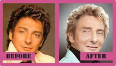 Barry Manilow Plastic Surgery – Was Not So Successful #barry #manilow #plastic #surgery http://tablet.remmont.com/barry-manilow-plastic-surgery-was-not-so-successful-barry-manilow-plastic-surgery/  # Barry Manilow Plastic Surgery Barry Manilow s Plastic Surgery Did Not Improve His Looks Barry Manilow is a singer, producer and songwriter from the United States. He was born in Brooklyn, New York City, and he is 71 years old. His most popular songs are Copacabana, Mandy and Can't smile without…