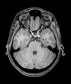 The blood vessels in human head lady picture show pinterest the human brain on mri had a brain mri today im still ccuart Choice Image