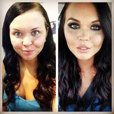 Image result for plastic surgery makeover