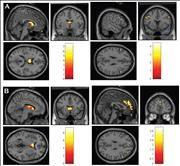 neuro responses to reward