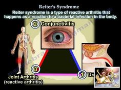 Reiter's Syndrome Reactive Arthritis - Everything You Need To Know - Dr. Reactive Arthritis, Emergency Medicine, Bacterial Infection, Nurse Practitioner, Need To Know, Shit Happens, Health, Youtube, Watch