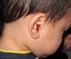 تمزق طبلة الاذن الأسباب وطرق العلاج :http://allwbenefitsu.info/معلومات-طبية/تمزق-طبلة-الاذن-و-أسباب-وطرق-علاج/
