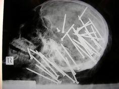 nails #skull #x-rays